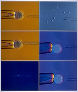 Stages of Nuclear Transfer using Microscopic Needle